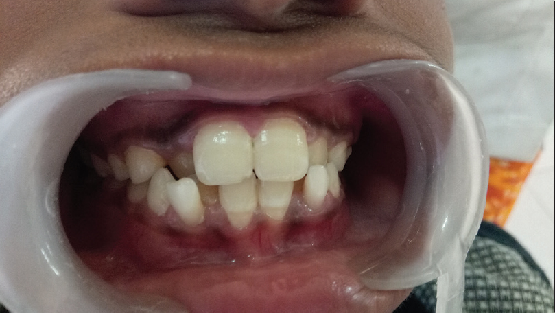 Figure 6: Malaligned anterior teeth in highly arched lip type.