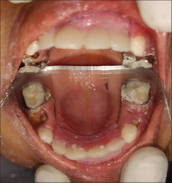 Figure 3: Occlusal view – With hollywood bridge appliance.